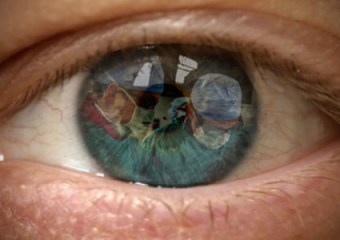 Cataract Department
